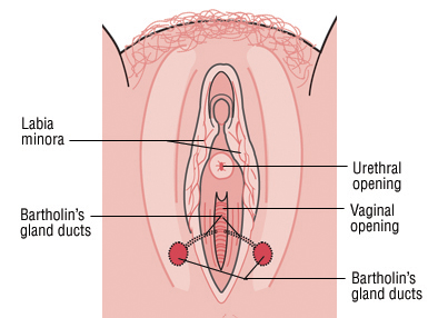 Bartholin's Cyst on Vulva
